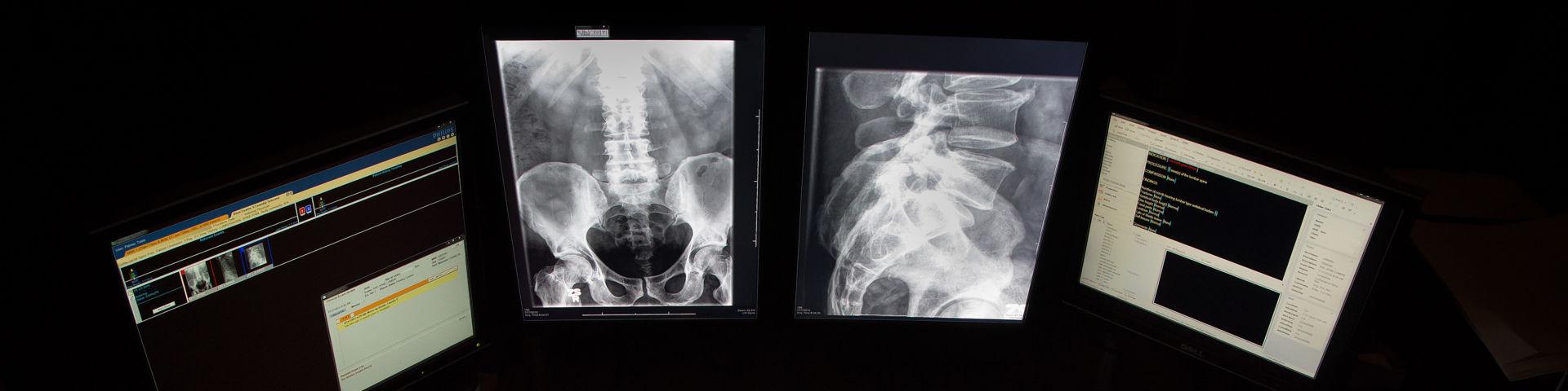 Radiology 1 2021 02 17 171808